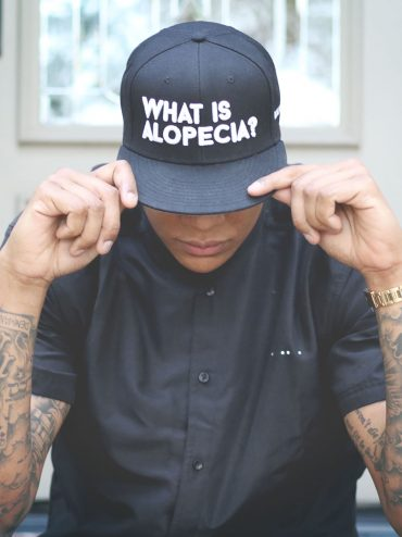 What is Alopecia? Snapback (Black)